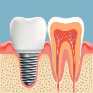 Complete your smile with dental implants in Greater Heights.